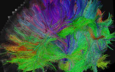 Concussion – Women's Brains